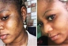 Photo of How To Remove Dark Spots From Face: 5 Overnight Home Remedies